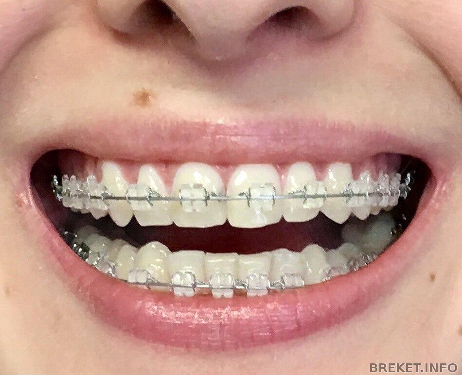 Возможно ли выпрямить один зуб