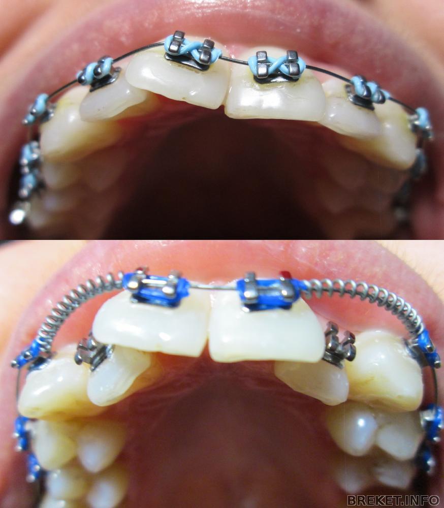 Чем лечить застудивший зуб