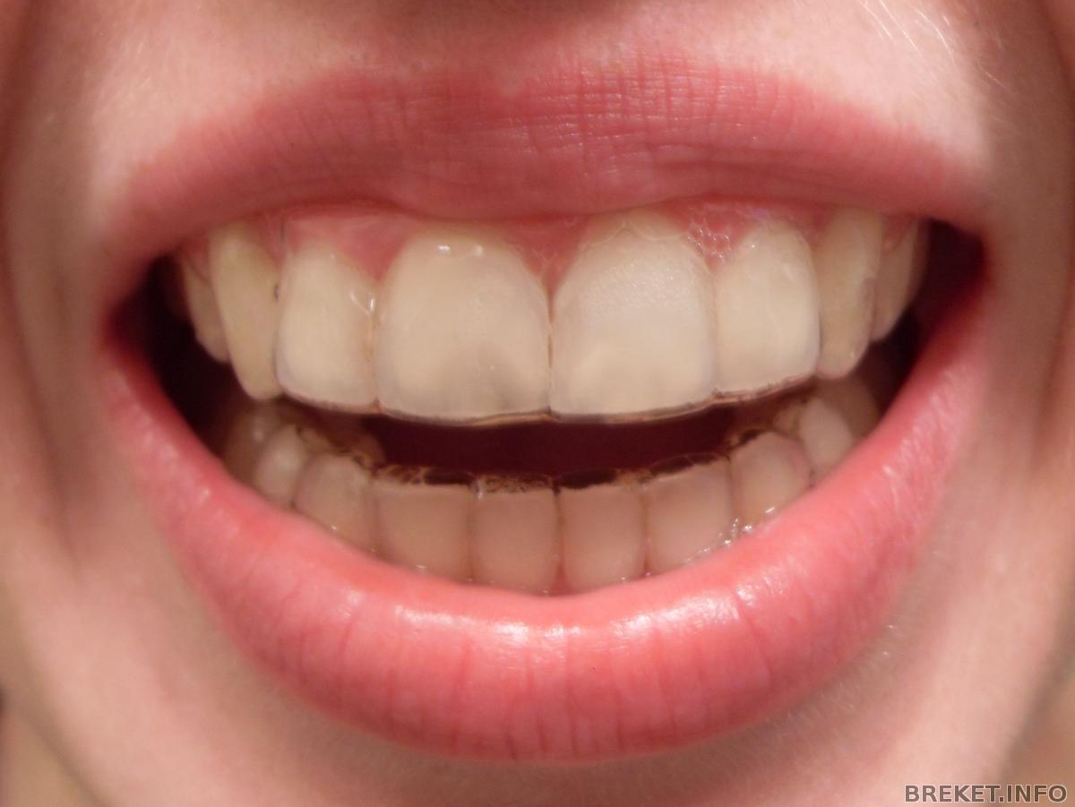 Отбеливающие пластинки на зубы купить в