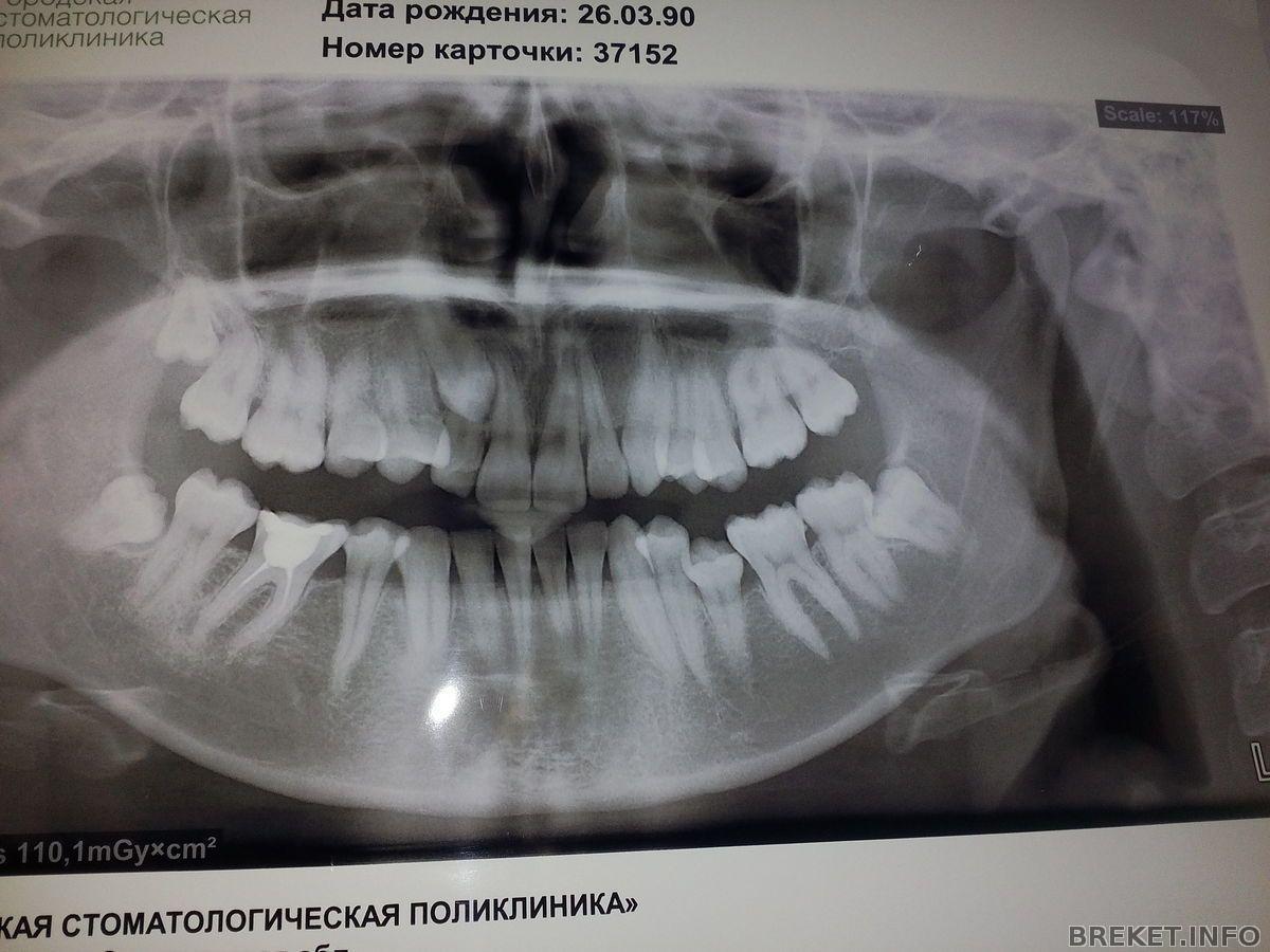 Могут ли зубы беспокоить только ночью