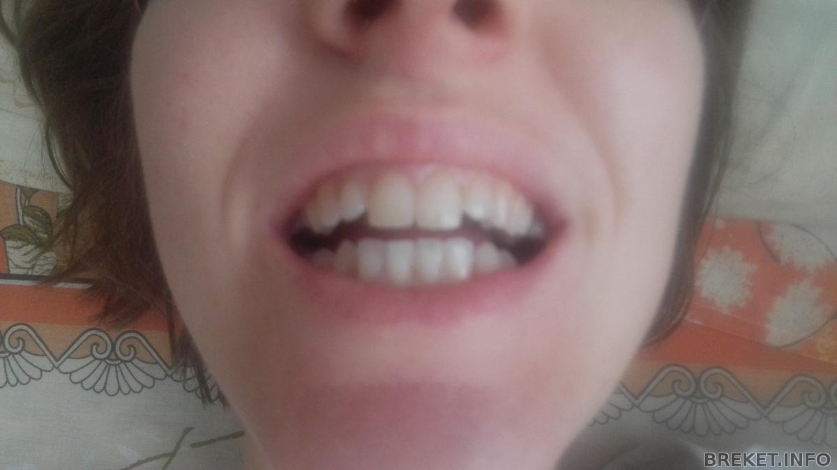 можно ли зубы очистить углем