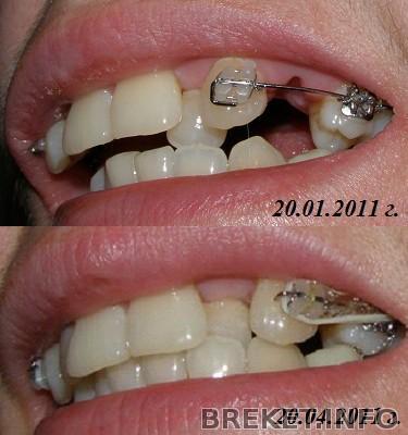 Удалять ли один зуб при установке брекетов