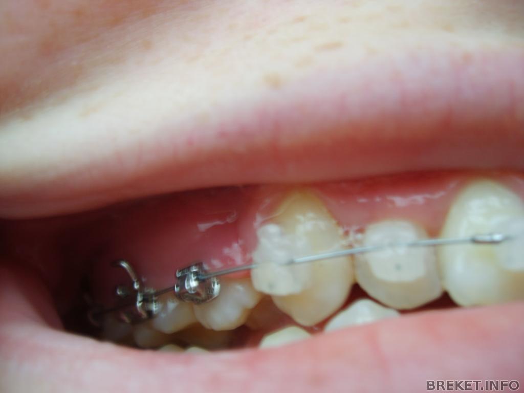 Десна сползают с зубов