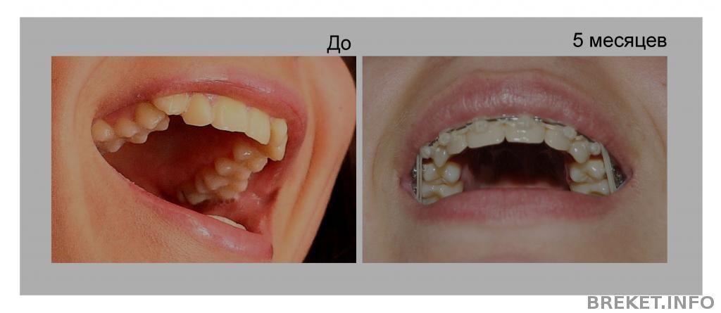Удалять зубы четверки