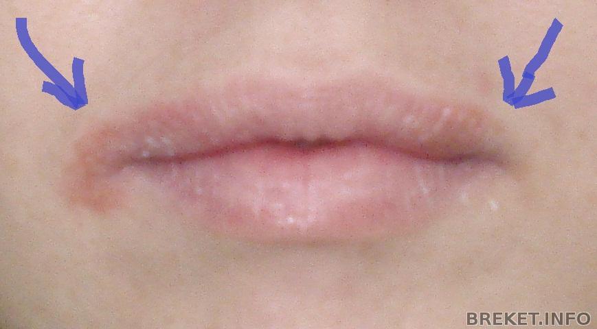 Почему не проходит заеда в углу рта