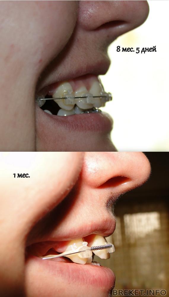 Как передвинуть один зуб