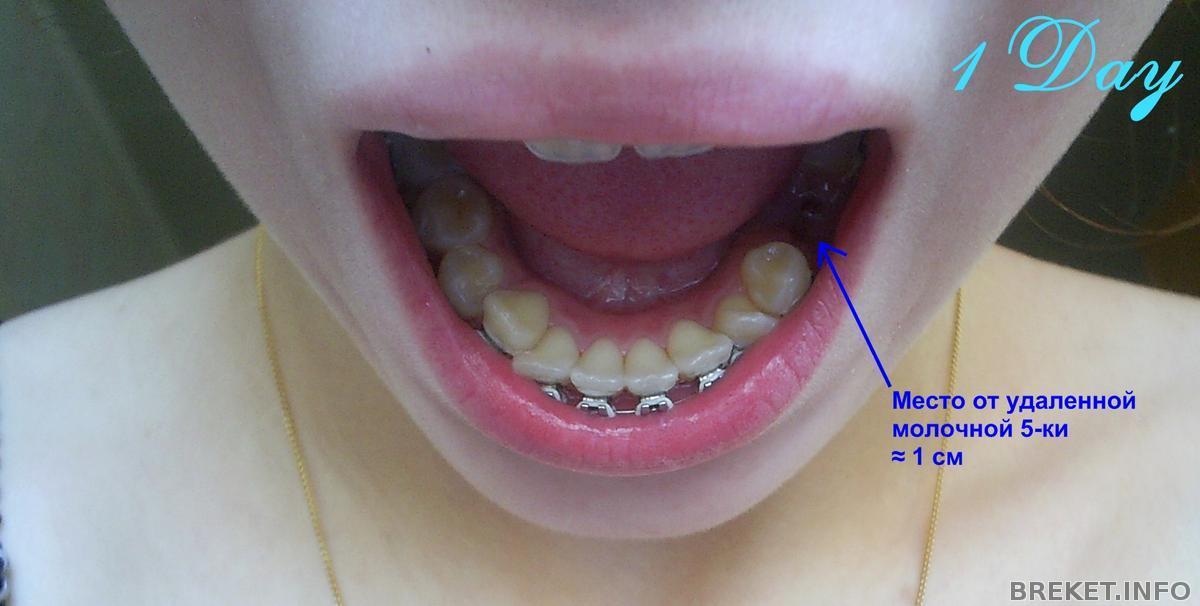 Если одного зуба нет что можно поставить