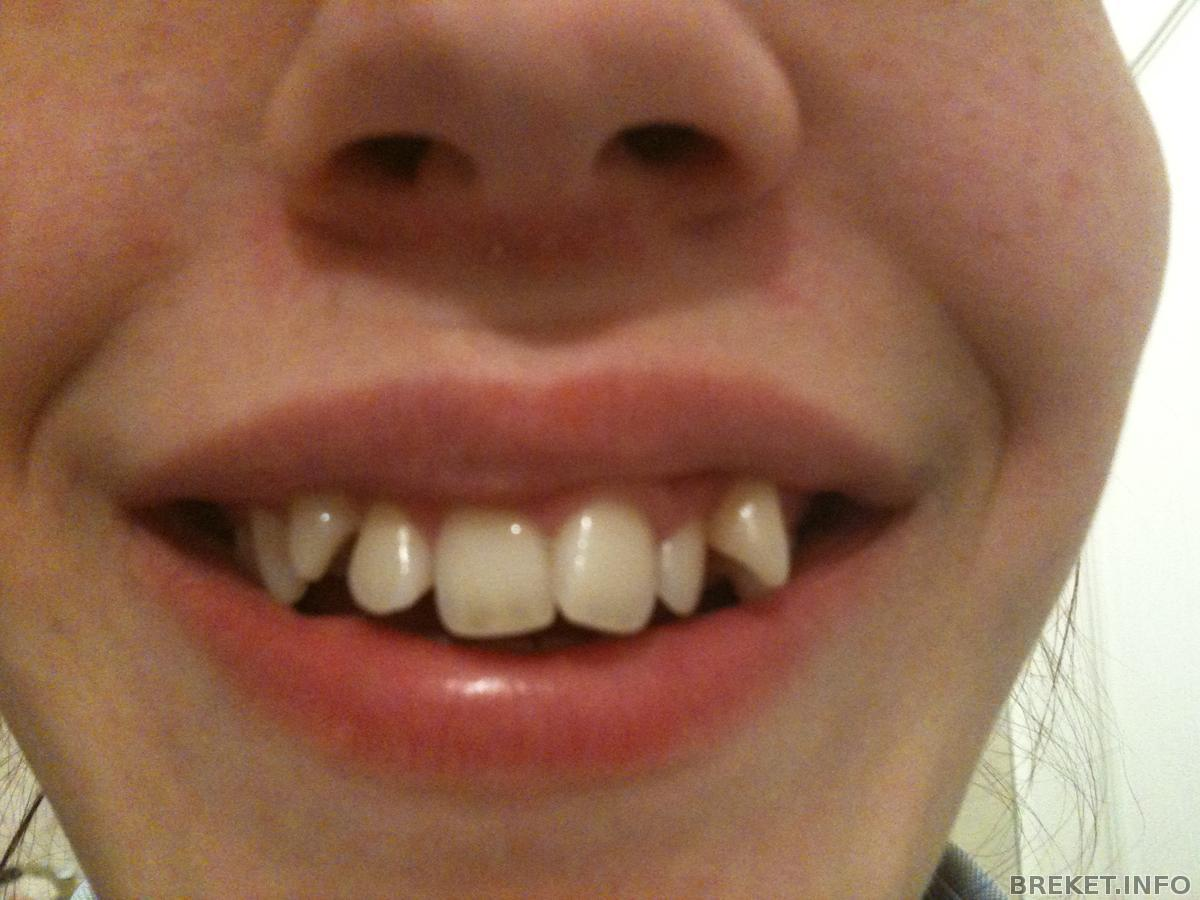 Очень кривые зубы у детей фото