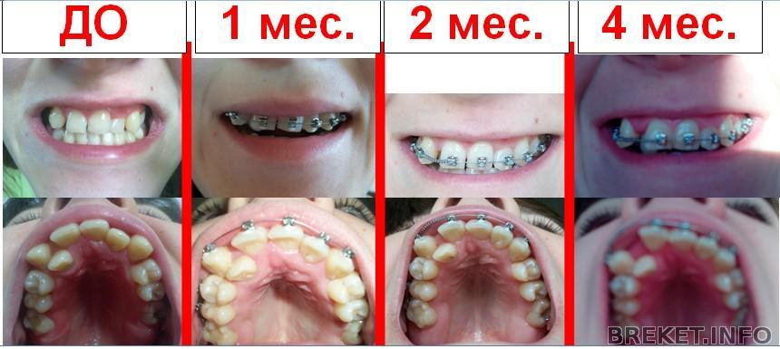 Сколько нужно носить брекеты на передних зубах