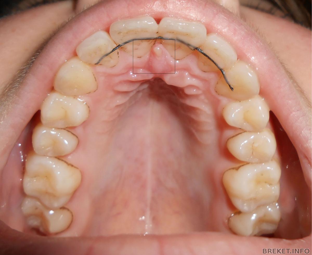 Болит нёбо во рту у ребенка 84
