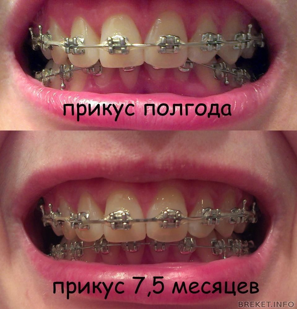 lyubitelskie-i-chastnie-russkie-porno-foto