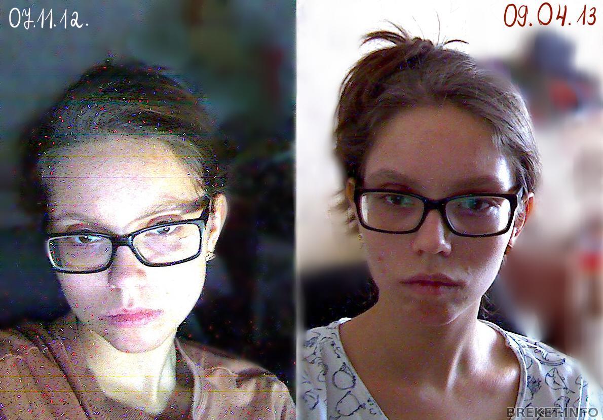 фото лица после удаления родинки
