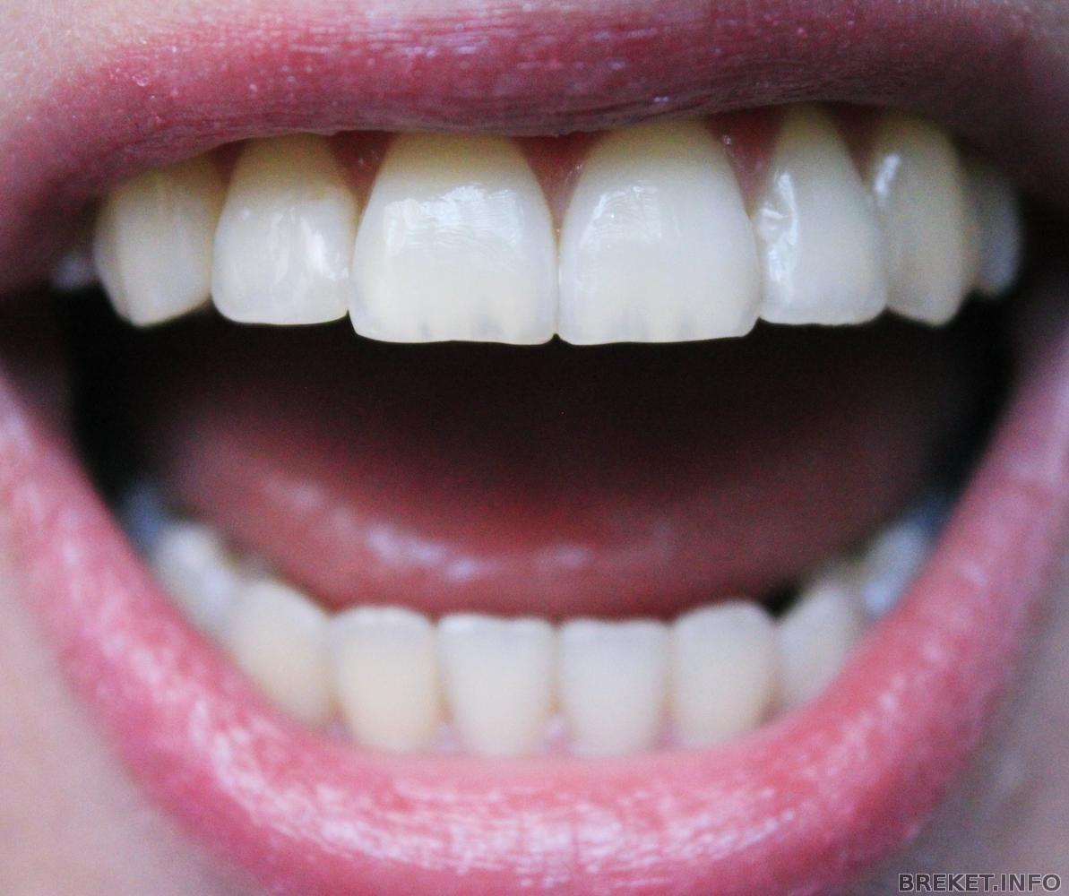 Чистка и профессиональное отбеливание зубов