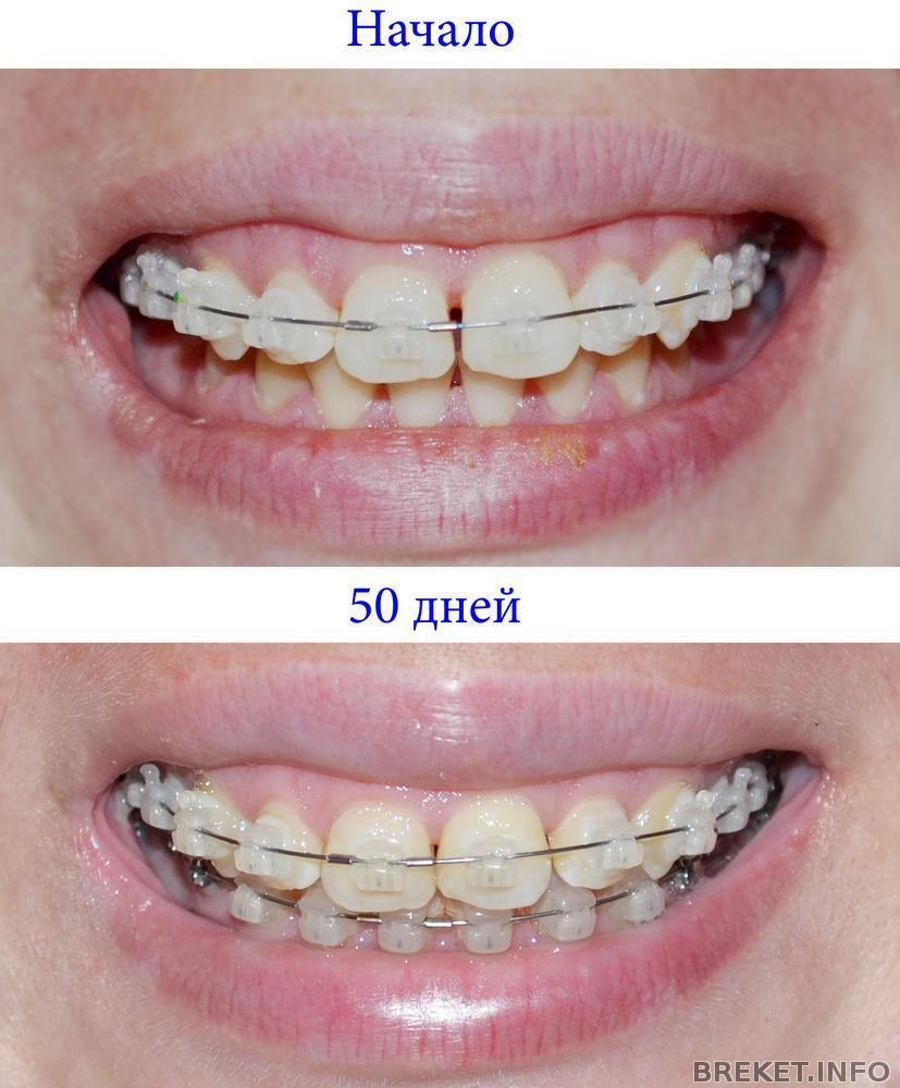 красивая форма зубов