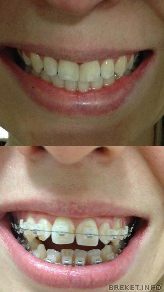 Могут ли испорченные зубы
