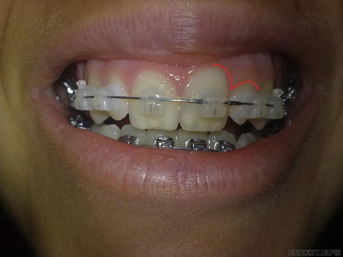 С щелочкой между зубов фото рыжая девушка 14 фотография