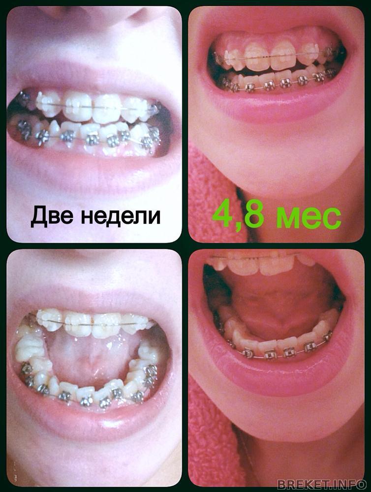 Что если зубы не выпрямляются в брекетах