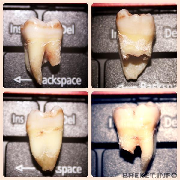 Когда можно удалить зуб в июне