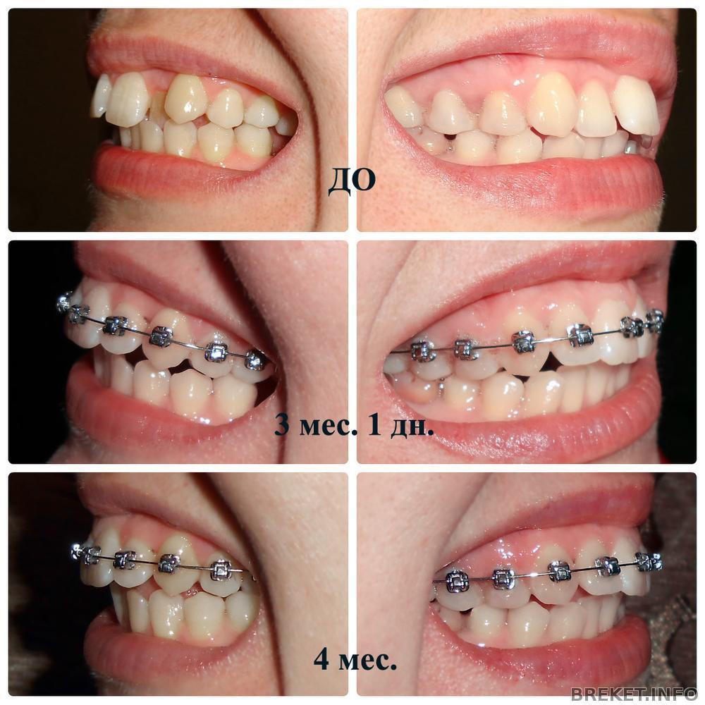 490Ставят ли брекеты на нарощенные зубы