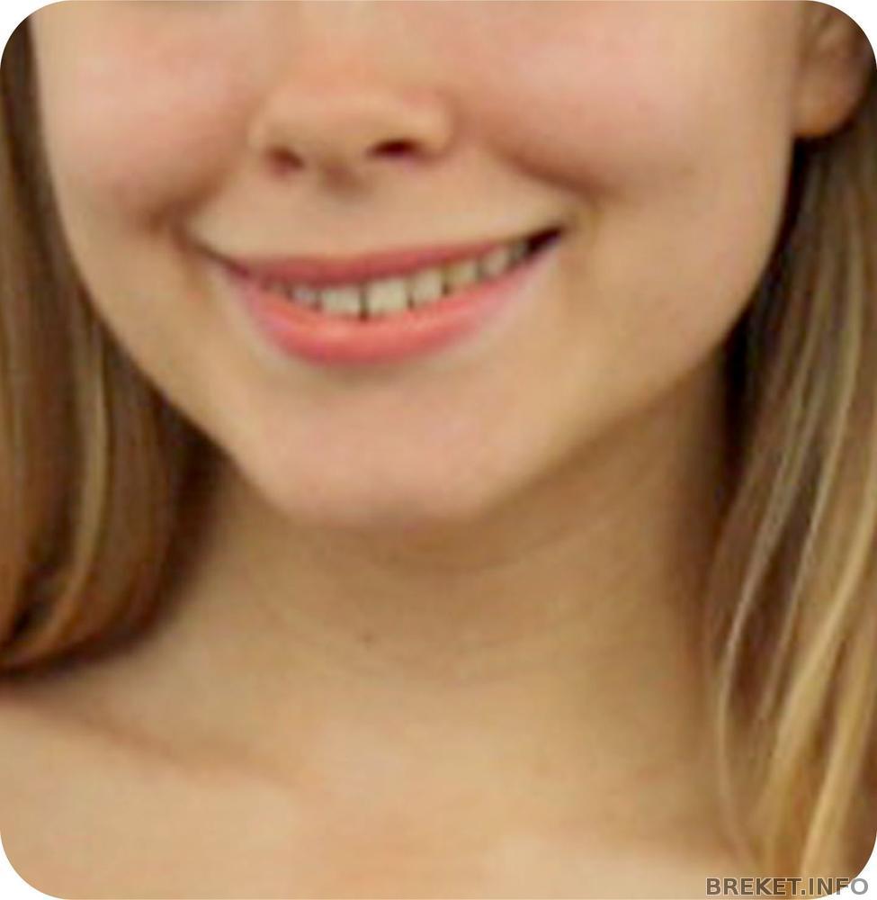 Как исправить кривую улыбку