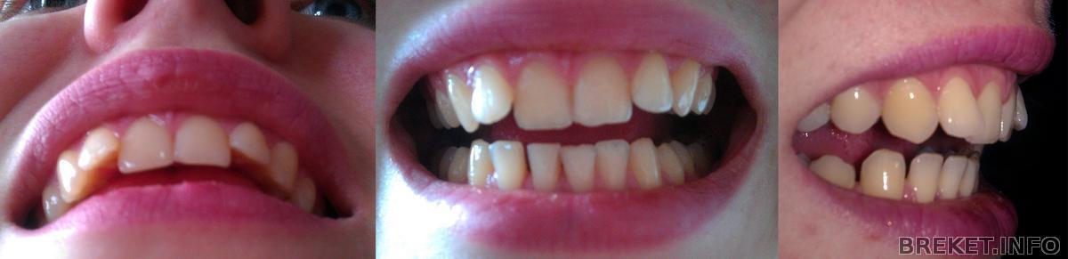 Зубы начинают выпирать