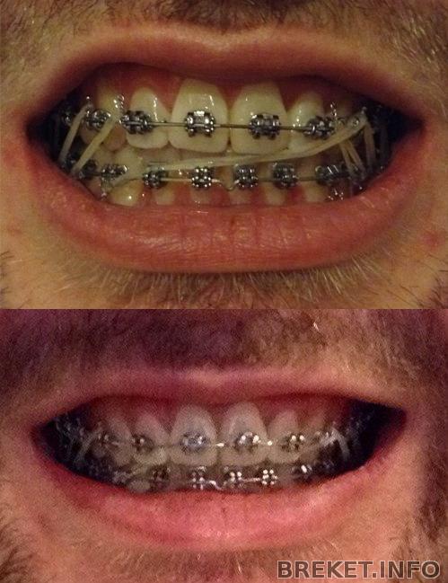 пример: время верхняя челюсть сильно выдвинута вперед термобелья оптом предлагает