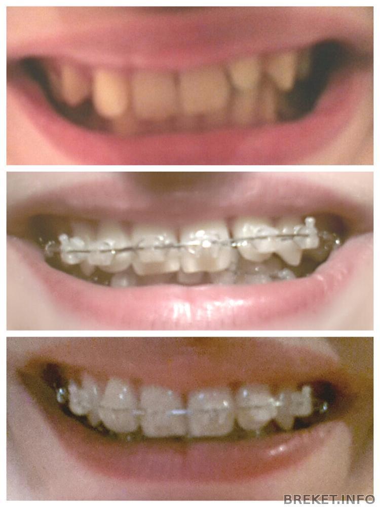Зубы единички