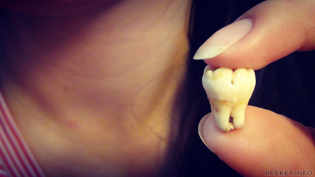 Что делать если лезет зуб мудрости и болит народные средства 44